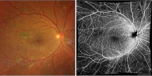 NPDR macular photocoagulation